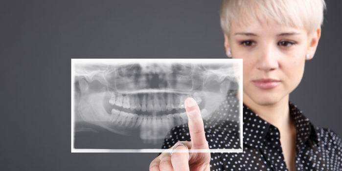 Дигитальный рентген