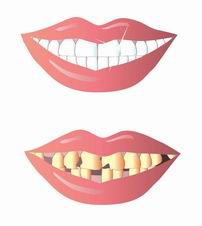 Реконструкция полости рта