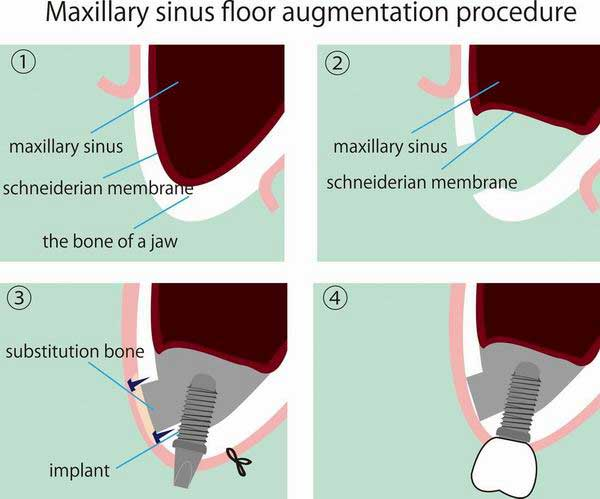 Sinus lifting