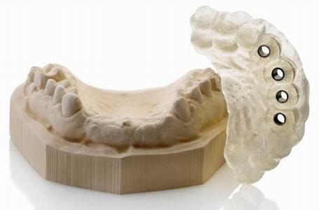 Имплантация зубов с навигатором