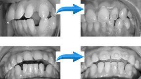 Ортодонтия невидимка прозрачными каппами – Видео Блог